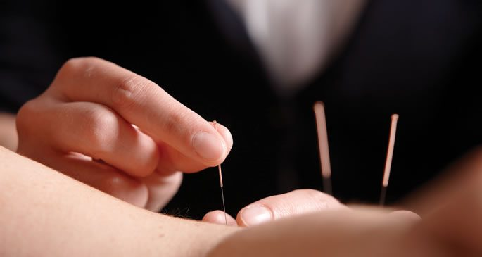 acupuncture treatment needle