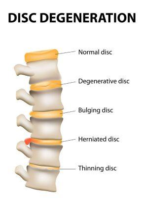 back pain disc degeneration bulging herniated thinning