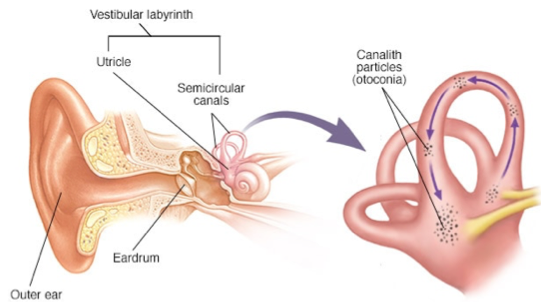 The inner ear and canalith repositioning, BPPV, vertigo